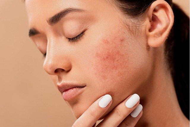 CBD Oil For Skin Canada